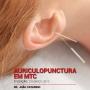 Auriculopunctura em MTC